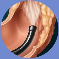 ql-colonoscopy